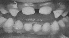 При една рядка генетична болест кучешките зъби добиват конична форма и силно израстват
