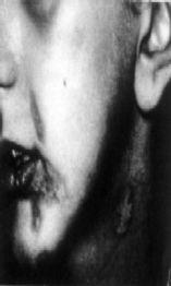 Болните от морфея получават виолетови екземи по долната устна